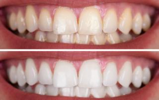 Teeth Whitening In Monroe NC