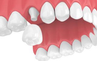 Dental Crowns - Monroe Family Dentistry